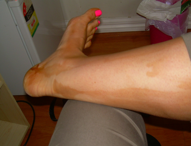 How to Remove Tanning Lotion from Your Skin