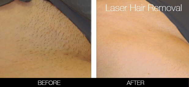Is it Safe to Do Brazilian Laser Hair Removal