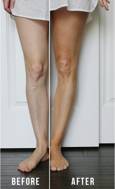 legs-before-and-after